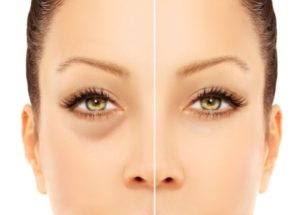 Dark circles under eyes: causes & treatments