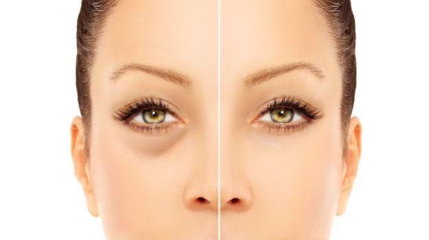Dark circles under eyes: causes & treatments